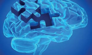 neurologie banniere